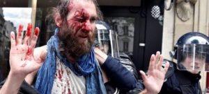 Jeremy, camarade montpelliérain blessé lors d'une manif' à Paris