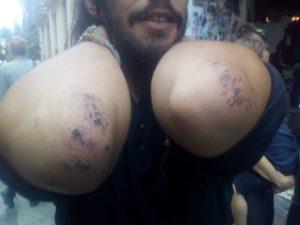 Blessures aux coudes de Loïc suite aux violences policières du 15 septembre